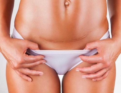 3 αλήθειες για την καισαρική τομή που όλοι πρέπει να ξέρουν